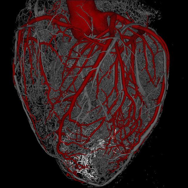 stem cells regenerate heart muscle in new study, Muscles
